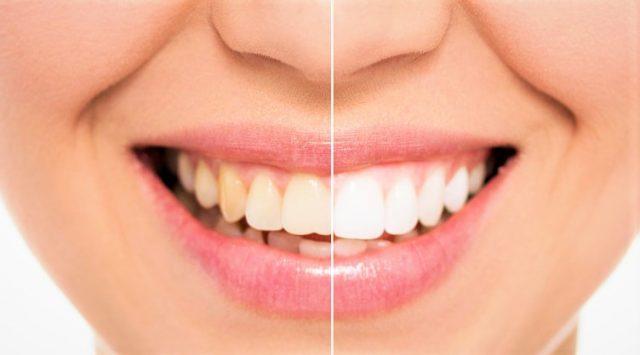 Nos conseils post-opératoires après la pose d'un implant dentaire